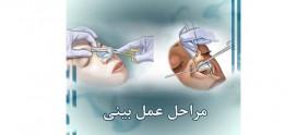 مراحل عمل بینی