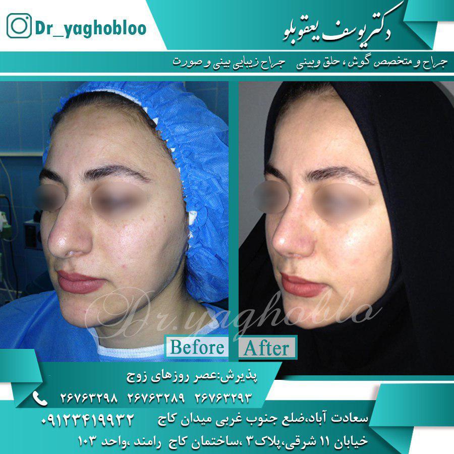 جراحی بینی در بانوان