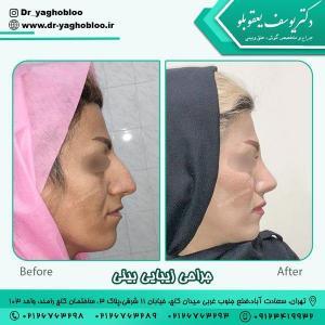 جراحی بینی در تهران 11