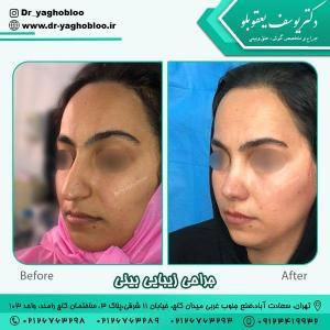 جراحی بینی در تهران 13