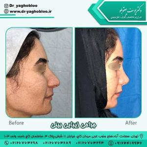 جراحی بینی در تهران 15