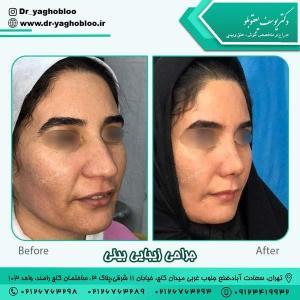 جراحی بینی در تهران 16