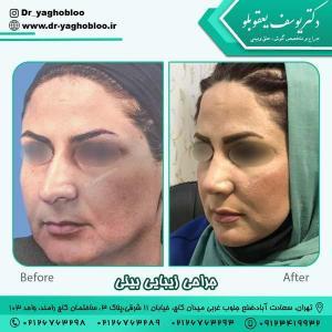 جراحی بینی در تهران 17