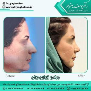 جراحی بینی در تهران 19