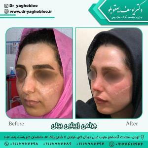 جراحی بینی در تهران 2