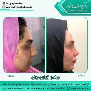 جراحی بینی در تهران 3