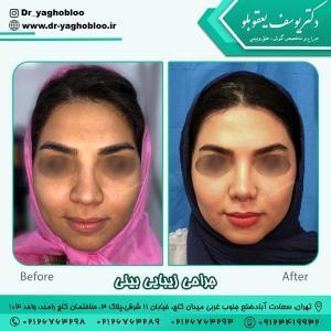 جراحی بینی در تهران 6