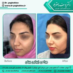 جراحی بینی در تهران 7