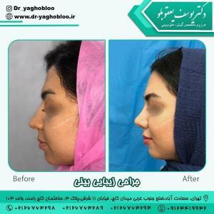 جراحی بینی در تهران 9