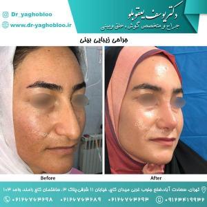 nose surgery (135)