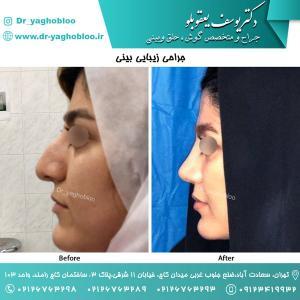 nose surgery (139)
