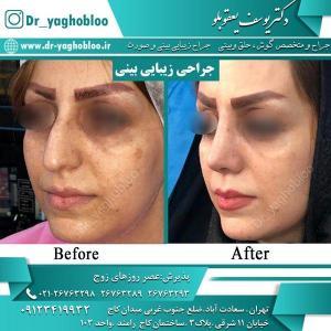 nose surgery (1)