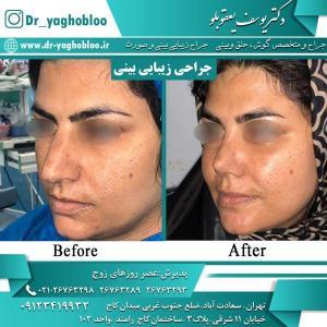 nose surgery (10)