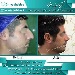 nose surgery (101) (1)