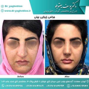 nose surgery (102)