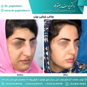 nose surgery (103)