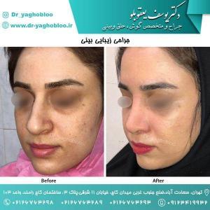 nose surgery (110)