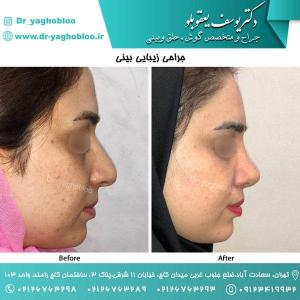 nose surgery (111)