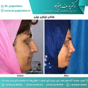 nose surgery (118)