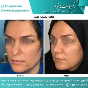 nose surgery (126)