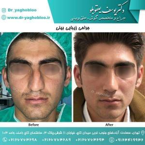 nose surgery (127)