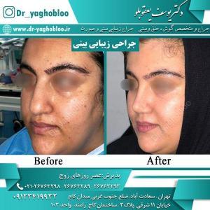 nose surgery (13)
