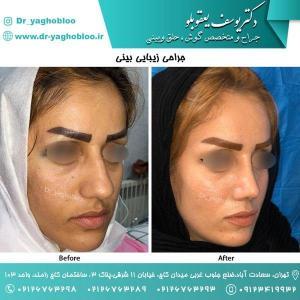 nose surgery (141)