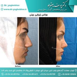 nose surgery (142)