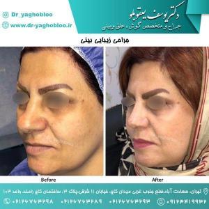 nose surgery (149)