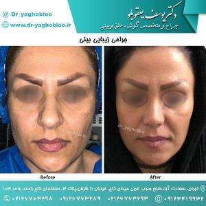 nose surgery (152)