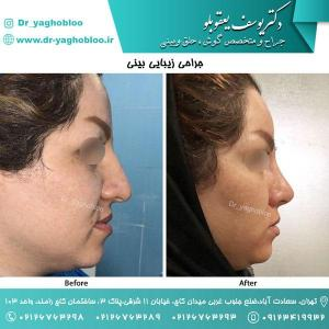 nose surgery (154)