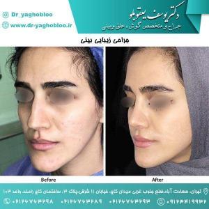 nose surgery (155)