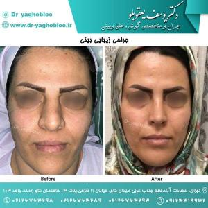 nose surgery (158)