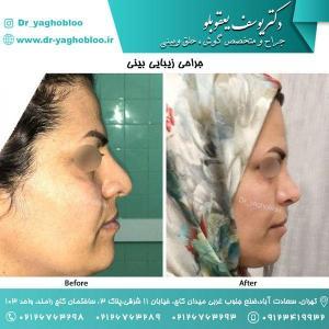 nose surgery (159)