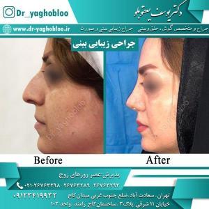 nose surgery (16)