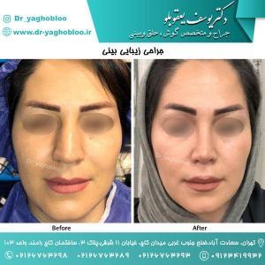 nose surgery (160)