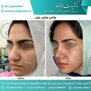 nose surgery (165)