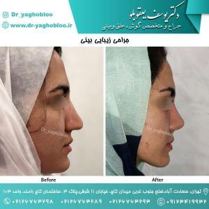 nose surgery (166)