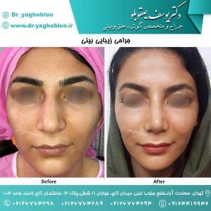nose surgery (167)