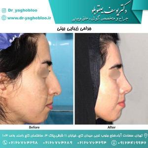 nose surgery (174)