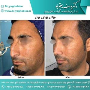 nose surgery (182)