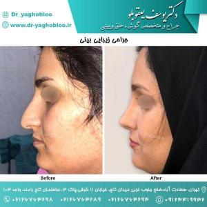nose surgery (184)
