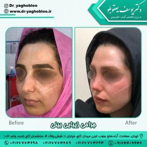 nose surgery (186)