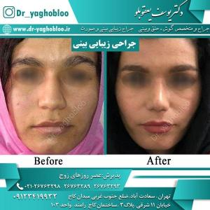 nose surgery (19)
