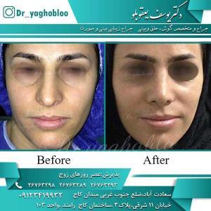 nose surgery (190)