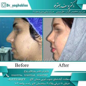 nose surgery (195)