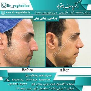 nose surgery (2) (1)