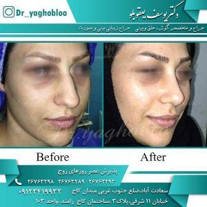 nose surgery (203)