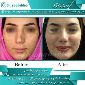 nose surgery (204)