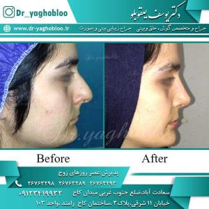 nose surgery (212)